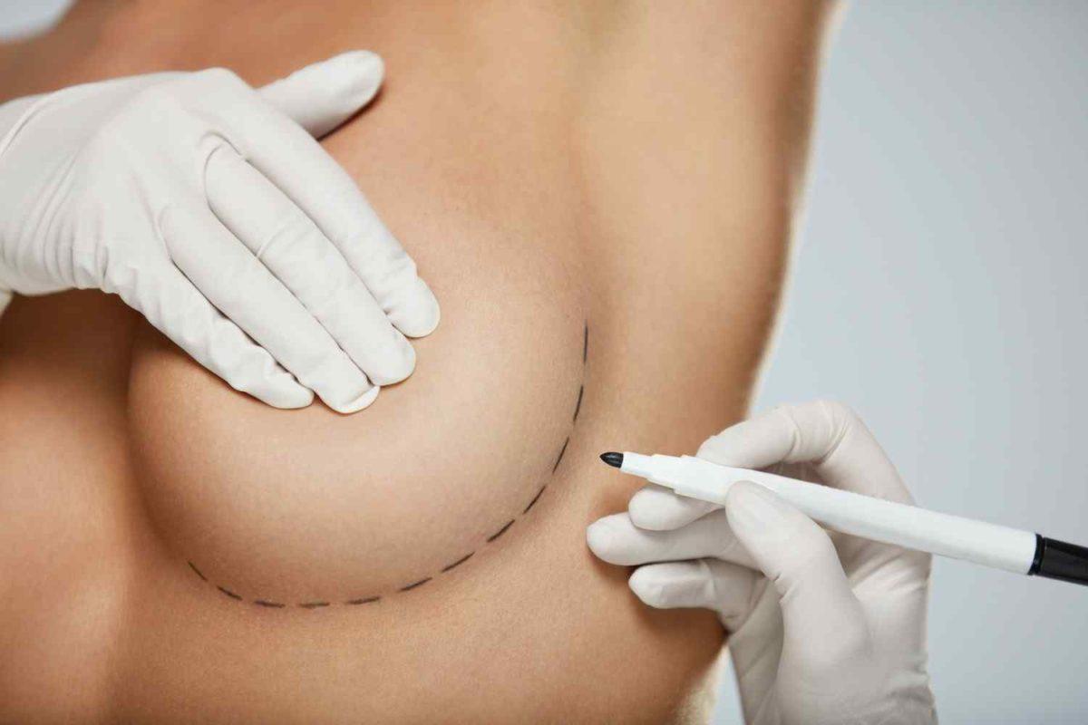 cosmetic-surgery-blog-12-1200x800.jpg